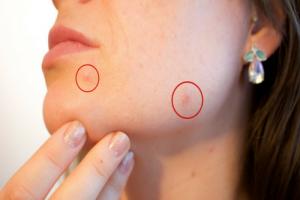 Pimples-Holistic_doctor_online_com