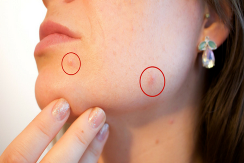Pimples-Holistic_doctor_online_com, Natural ways to get rid of pimples (Acne)