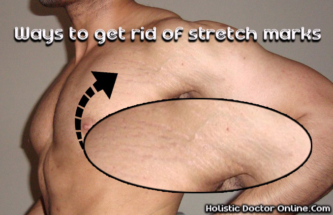 Glycolic Acid On Stretch Markss