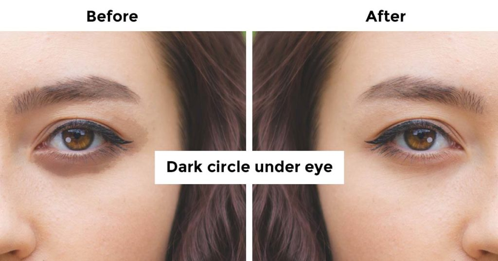 Dark circle under the eye